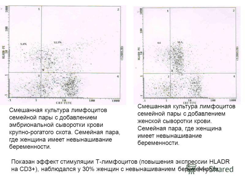 Смешанная культура лимфоцитов семейной пары с добавлением эмбриональной сыворотки крови крупно-рогатого скота. Семейная пара, где женщина имеет невынашивание беременности. Смешанная культура лимфоцитов семейной пары с добавлением женской сыворотки кр
