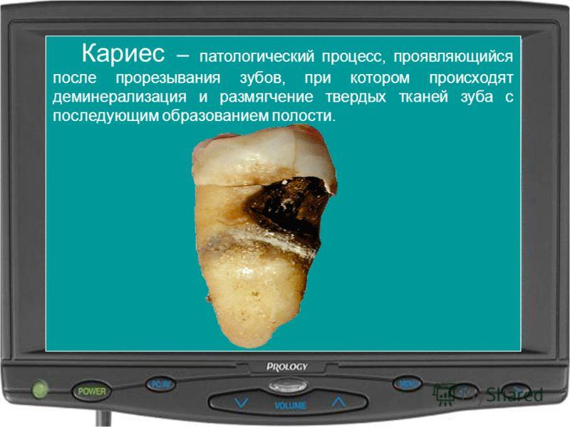 Кариес – патологический процесс, проявляющийся после прорезывания зубов, при котором происходят деминерализация и размягчение твердых тканей зуба с последующим образованием полости.
