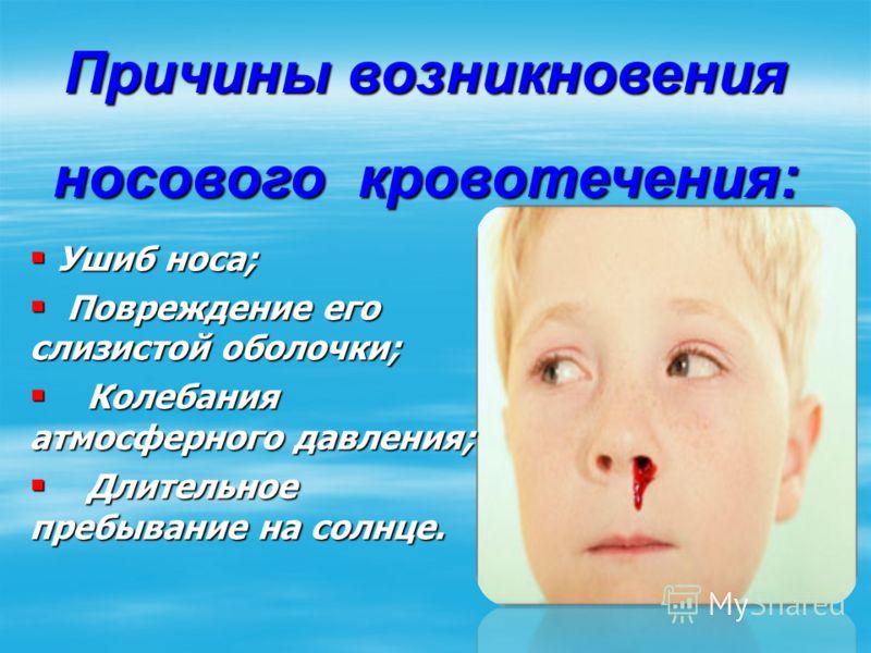 Ушиб носа; Ушиб носа; Повреждение его слизистой оболочки; Повреждение его слизистой оболочки; Колебания атмосферного давления; Колебания атмосферного давления; Длительное пребывание на солнце. Длительное пребывание на солнце. Причины возникновения но
