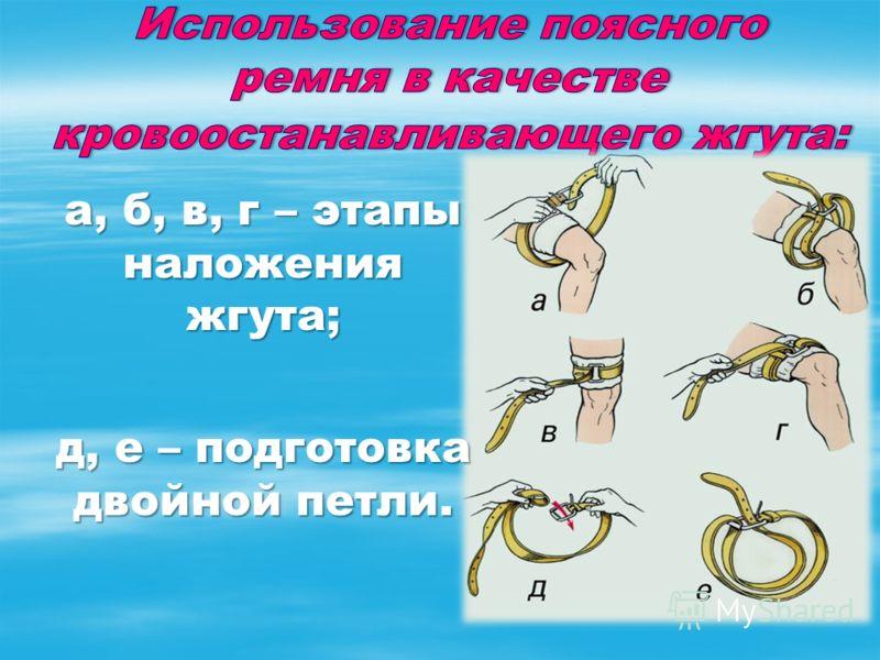 а, б, в, г – этапы наложения жгута; д, е – подготовка двойной петли.