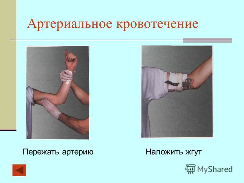Артериальное кровотечение Пережать артериюНаложить жгут