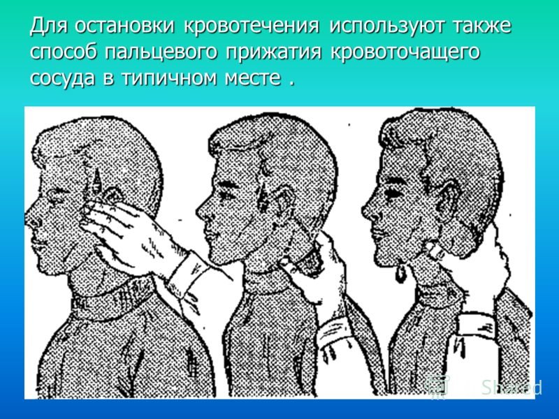 Для остановки кровотечения используют также способ пальцевого прижатия кровоточащего сосуда в типичном месте.