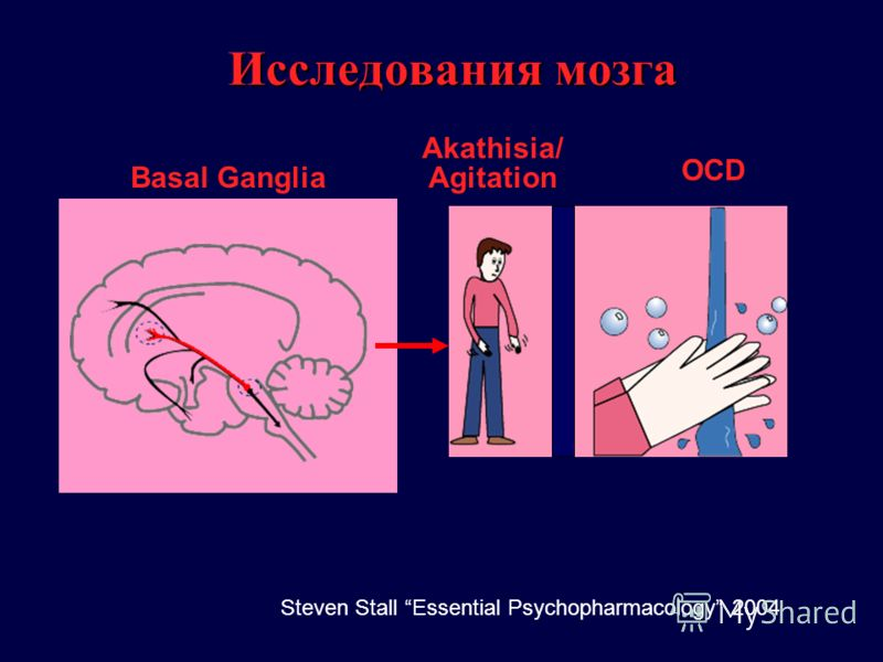 Basal Ganglia Akathisia/ Agitation Исследования мозга OCD Steven Stall Essential Psychopharmacology 2004