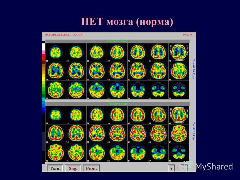 ПЕТ мозга (норма)