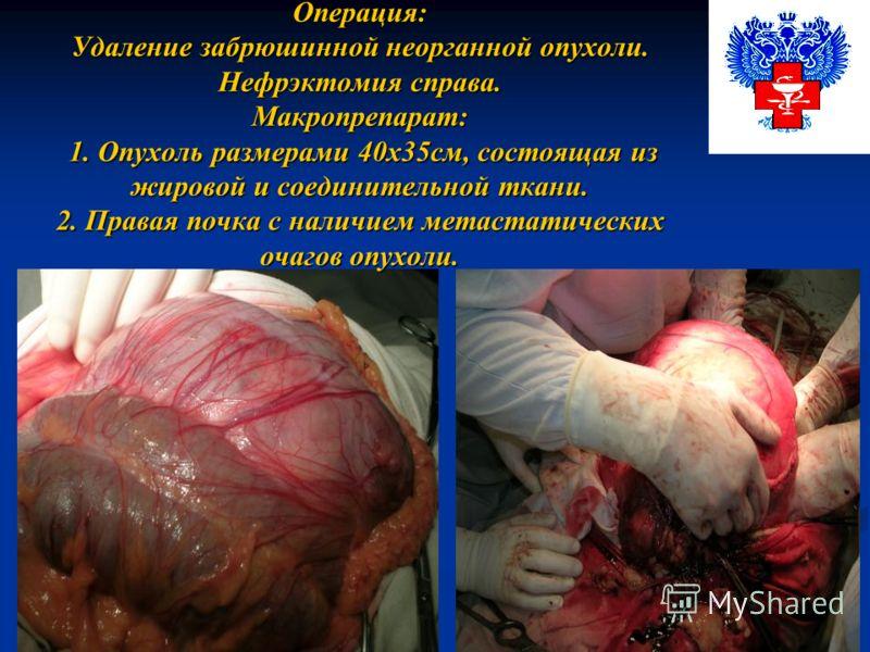 Операция: Удаление забрюшинной неорганной опухоли. Нефрэктомия справа. Макропрепарат: 1. Опухоль размерами 40х35см, состоящая из жировой и соединительной ткани. 2. Правая почка с наличием метастатических очагов опухоли.