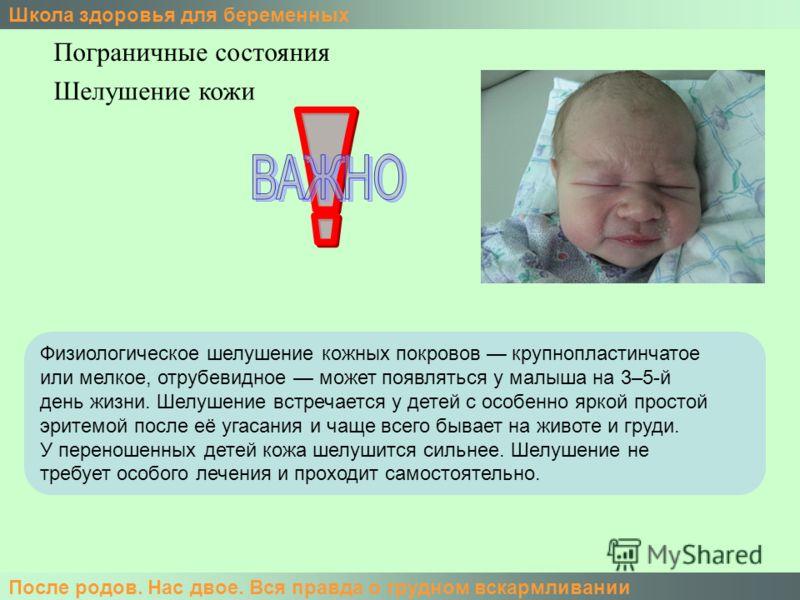 Школа здоровья для беременных После родов. Нас двое. Вся правда о грудном вскармливании Пограничные состояния Физиологическое шелушение кожных покровов крупнопластинчатое или мелкое, отрубевидное может появляться у малыша на 3–5-й день жизни. Шелушен