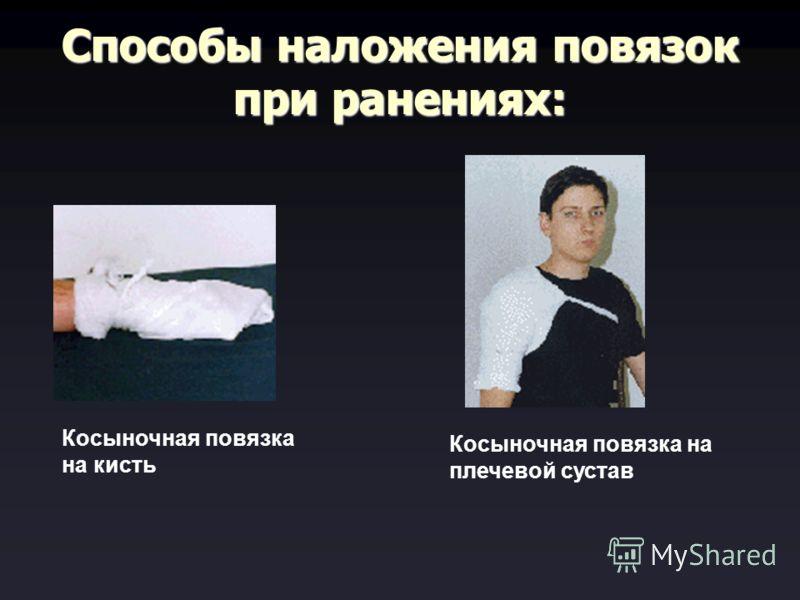 Способы наложения повязок при ранениях: Косыночная повязка на кисть Косыночная повязка на плечевой сустав
