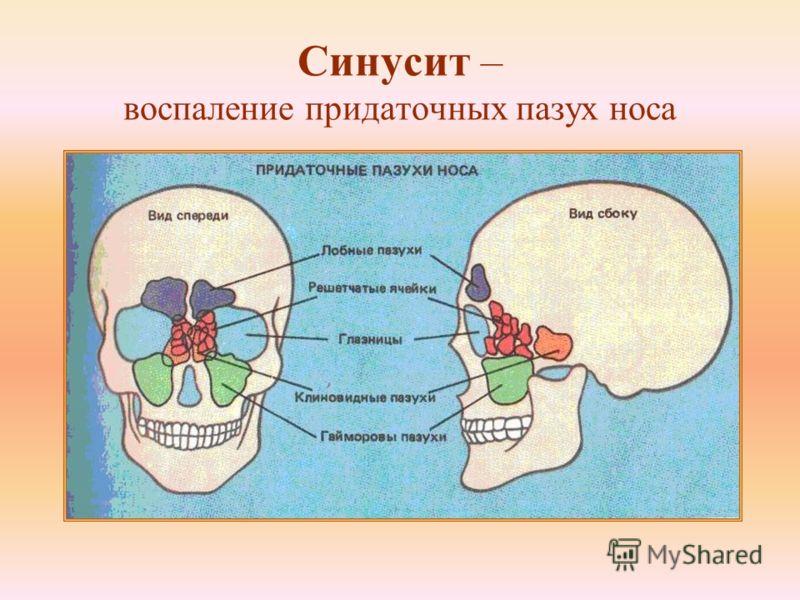 Синусит – воспаление придаточных пазух носа