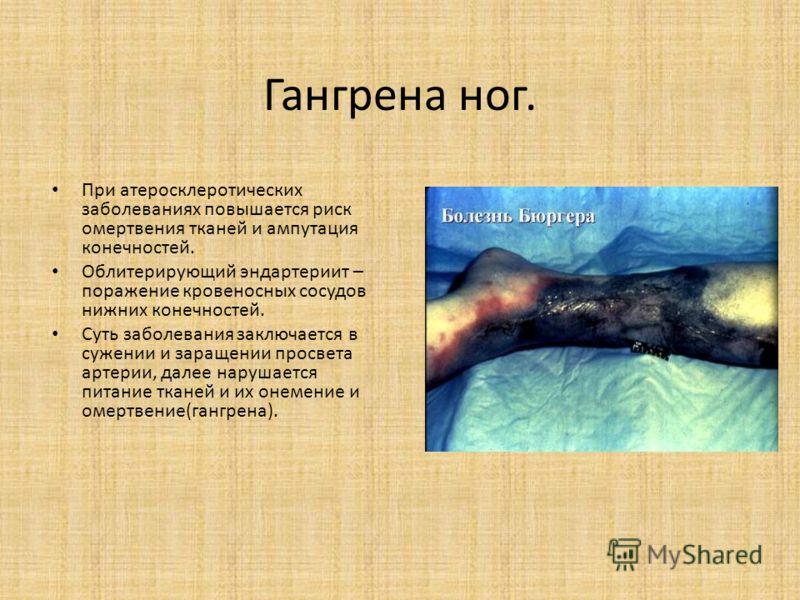 Гангрена ног. При атеросклеротических заболеваниях повышается риск омертвения тканей и ампутация конечностей. Облитерирующий эндартериит – поражение кровеносных сосудов нижних конечностей. Суть заболевания заключается в сужении и заращении просвета а