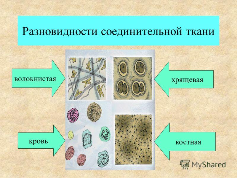 Разновидности соединительной ткани костная хрящевая волокнистая кровь