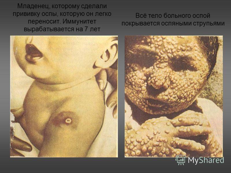 Младенец, которому сделали прививку оспы, которую он легко переносит. Иммунитет вырабатывается на 7 лет Всё тело больного оспой покрывается оспяными струпьями