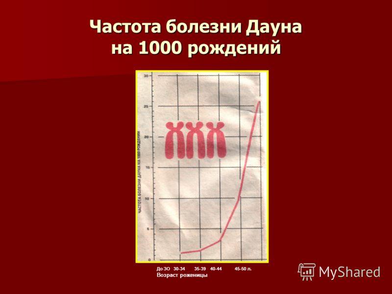 Частота болезни Дауна на 1000 рождений До ЗО30-34 35-39 40-44 45-50 л. Возраст роженицы
