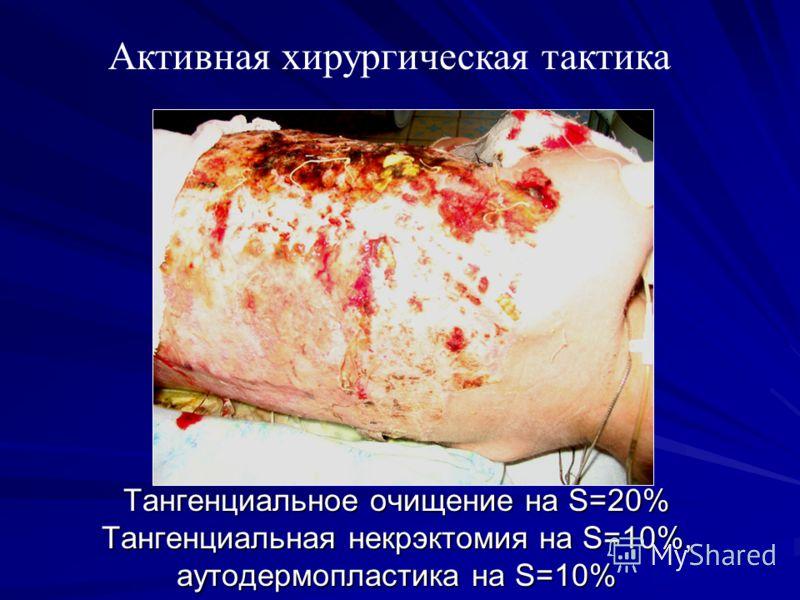 Тангенциальное очищение на S=20% Тангенциальная некрэктомия на S=10%, аутодермопластика на S=10% Активная хирургическая тактика