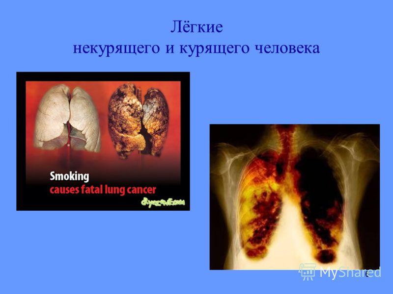 6 Лёгкие некурящего и курящего человека
