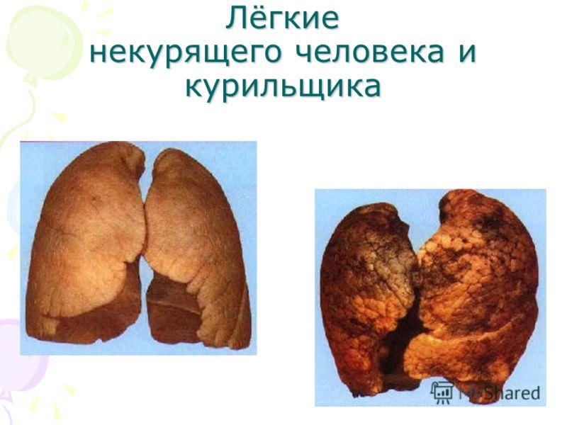 Лёгкие некурящего человека и курильщика