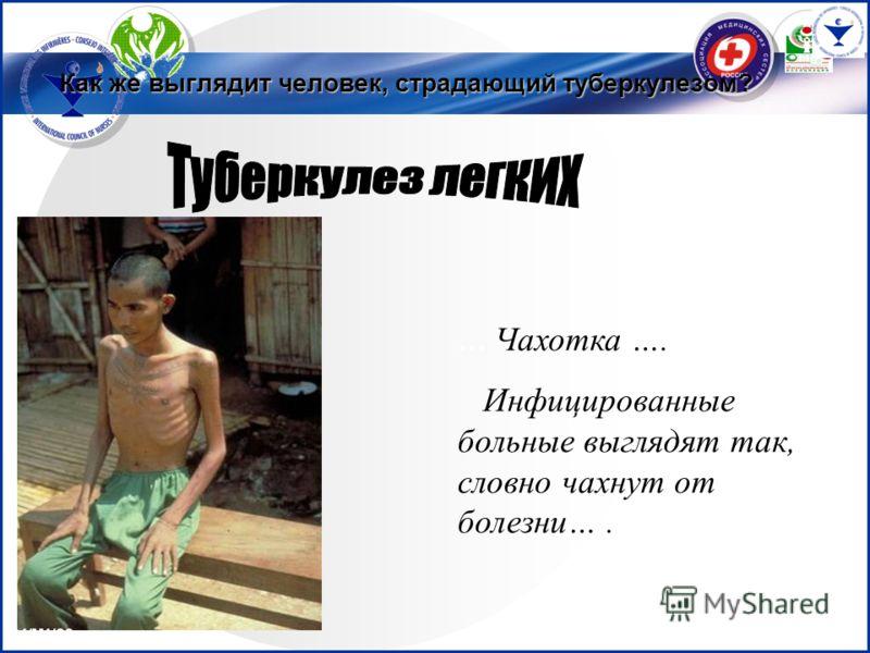 … Чахотка …. Инфицированные больные выглядят так, словно чахнут от болезни…. C1/M1/S3 Как же выглядит человек, страдающий туберкулезом?