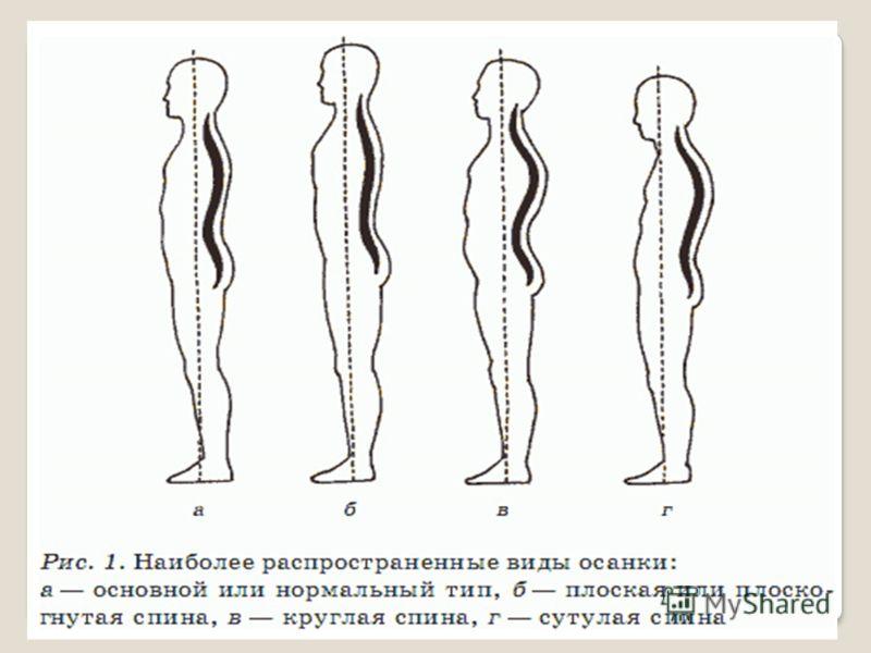 Исправление сколиоза корсет