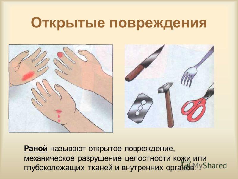 Открытые повреждения Раной называют открытое повреждение, механическое разрушение целостности кожи или глубоколежащих тканей и внутренних органов.