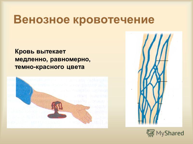 Венозное кровотечение Кровь вытекает медленно, равномерно, темно-красного цвета