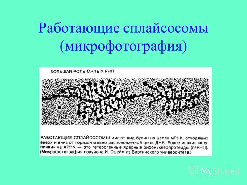 Работающие сплайсосомы (микрофотография)