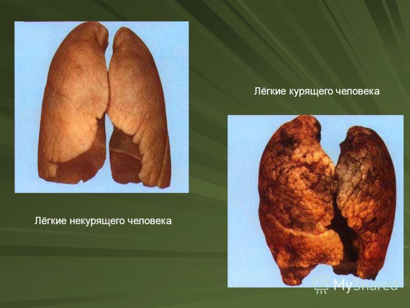 Лёгкие некурящего человека Лёгкие курящего человека