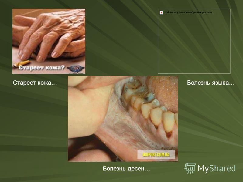 от чего бывает неприятный запах изо рта