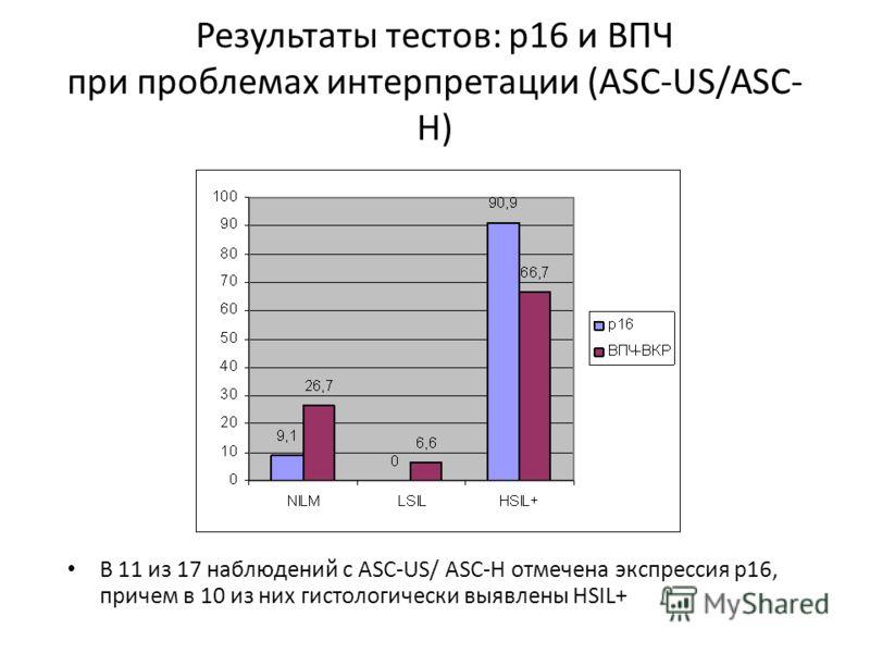 Результаты тестов: р16 и ВПЧ при проблемах интерпретации (ASC-US/ASC- H) В 11 из 17 наблюдений с ASC-US/ ASC-H отмечена экспрессия р16, причем в 10 из них гистологически выявлены HSIL+