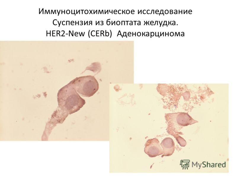 Иммуноцитохимическое исследование Суспензия из биоптата желудка. HER2-New (CERb) Аденокарцинома