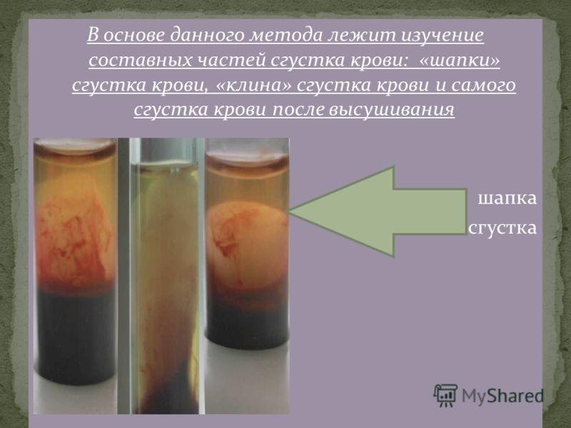 В основе данного метода лежит изучение составных частей сгустка крови: «шапки» сгустка крови, «клина» сгустка крови и самого сгустка крови после высушивания шапка сгустка