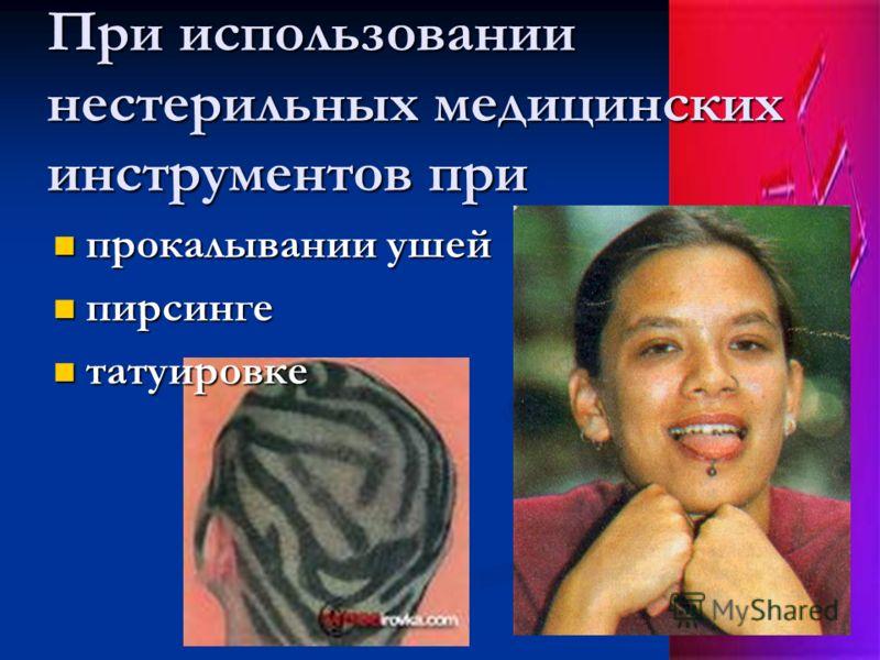 При использовании нестерильных медицинских инструментов при прокалывании ушей прокалывании ушей пирсинге пирсинге татуировке татуировке