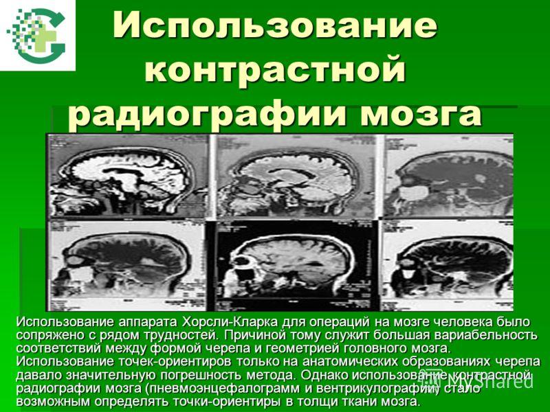 Использование контрастной радиографии мозга Использование аппарата Хорсли-Кларка для операций на мозге человека было сопряжено с рядом трудностей. Причиной тому служит большая вариабельность соответствий между формой черепа и геометрией головного моз