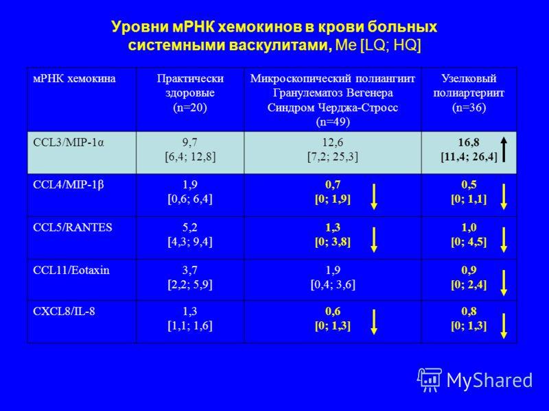 Уровни мРНК хемокинов в крови больных системными васкулитами, Me [LQ; HQ] мРНК хемокинаПрактически здоровые (n=20) Микроскопический полиангиит Гранулематоз Вегенера Синдром Черджа-Стросс (n=49) Узелковый полиартериит (n=36) CCL3/MIP-1α9,7 [6,4; 12,8]