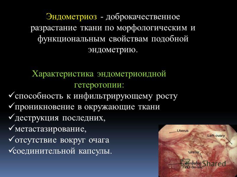 Эндометриоз - доброкачественное разрастание ткани по морфологическим и функциональным свойствам подобной эндометрию. Характеристика эндометриоидной гетеротопии: способность к инфильтрирующему росту проникновение в окружающие ткани деструкция последни