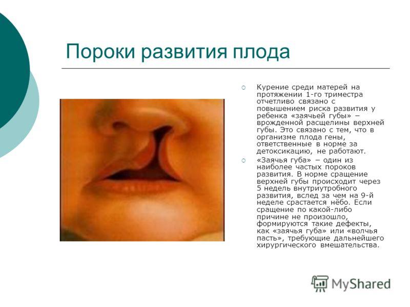 Пороки развития плода Курение среди матерей на протяжении 1-го триместра отчетливо связано с повышением риска развития у ребенка «заячьей губы» врожденной расщелины верхней губы. Это связано с тем, что в организме плода гены, ответственные в норме за