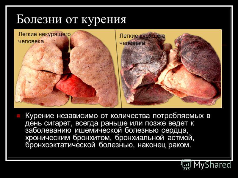Болезни от курения Курение независимо от количества потребляемых в день сигарет, всегда раньше или позже ведет к заболеванию ишемической болезнью сердца, хроническим бронхитом, бронхиальной астмой, бронхоэктатической болезнью, наконец раком. Легкие н