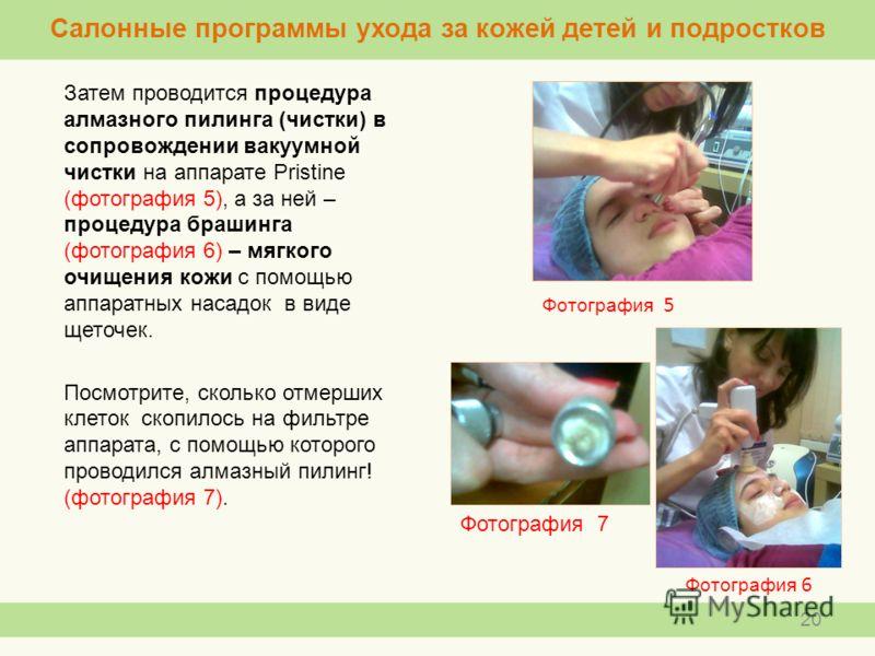 Затем проводится процедура алмазного пилинга (чистки) в сопровождении вакуумной чистки на аппарате Pristine (фотография 5), а за ней – процедура брашинга (фотография 6) – мягкого очищения кожи с помощью аппаратных насадок в виде щеточек. Посмотрите,