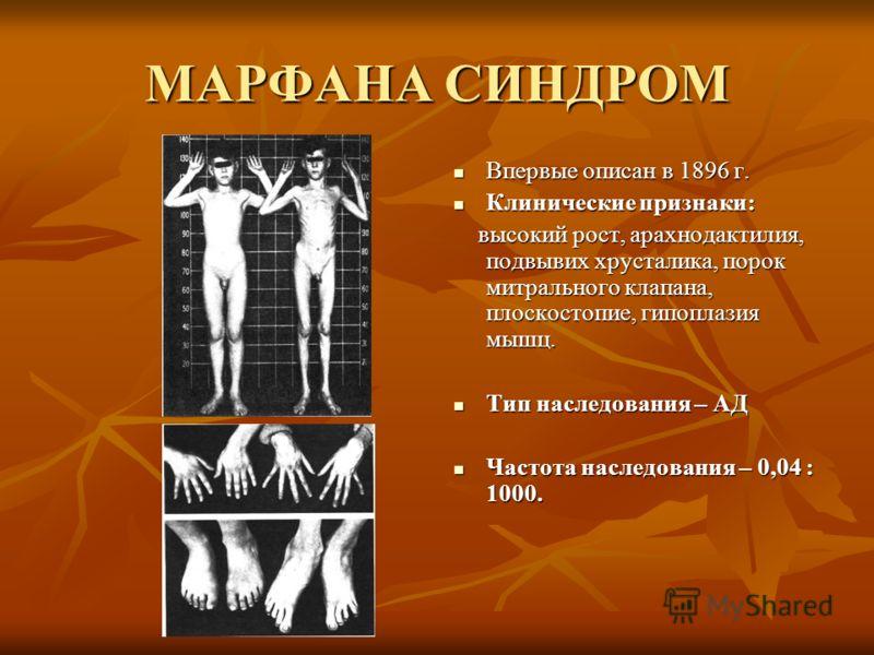 МАРФАНА СИНДРОМ Впервые описан в 1896 г. Впервые описан в 1896 г. Клинические признаки: Клинические признаки: высокий рост, арахнодактилия, подвывих хрусталика, порок митрального клапана, плоскостопие, гипоплазия мышц. высокий рост, арахнодактилия, п