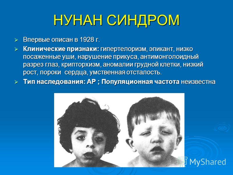 НУНАН СИНДРОМ Впервые описан в 1928 г. Впервые описан в 1928 г. Клинические признаки: гипертелоризм, эпикант, низко посаженные уши, нарушение прикуса, антимонголоидный разрез глаз, крипторхизм, аномалии грудной клетки, низкий рост, пороки сердца, умс