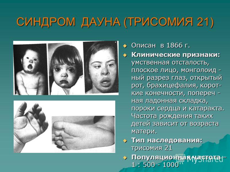 СИНДРОМ ДАУНА (ТРИСОМИЯ 21) Описан в 1866 г. Описан в 1866 г. Клинические признаки: умственная отсталость, плоское лицо, монголоид - ный разрез глаз, открытый рот, брахицефалия, корот- кие конечности, попереч - ная ладонная складка, пороки сердца и к