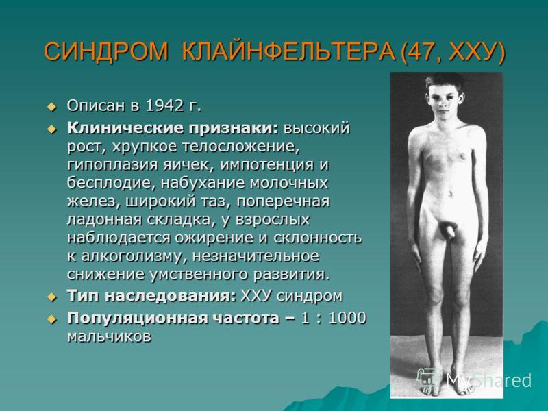 СИНДРОМ КЛАЙНФЕЛЬТЕРА (47, ХХУ) Описан в 1942 г. Описан в 1942 г. Клинические признаки: высокий рост, хрупкое телосложение, гипоплазия яичек, импотенция и бесплодие, набухание молочных желез, широкий таз, поперечная ладонная складка, у взрослых наблю