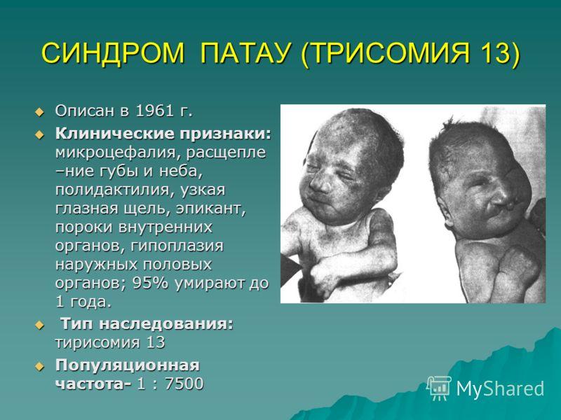 СИНДРОМ ПАТАУ (ТРИСОМИЯ 13) Описан в 1961 г. Описан в 1961 г. Клинические признаки: микроцефалия, расщепле –ние губы и неба, полидактилия, узкая глазная щель, эпикант, пороки внутренних органов, гипоплазия наружных половых органов; 95% умирают до 1 г