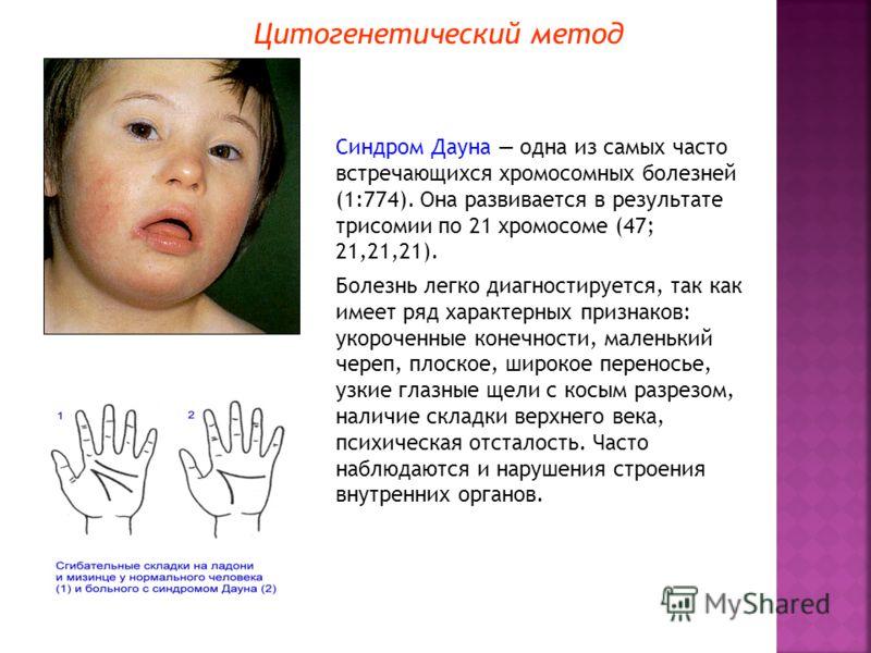 Цитогенетический метод Синдром Дауна одна из самых часто встречающихся хромосомных болезней (1:774). Она развивается в результате трисомии по 21 хромосоме (47; 21,21,21). Болезнь легко диагностируется, так как имеет ряд характерных признаков: укороче