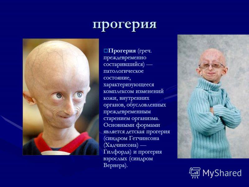 прогерия Прогерия (греч. преждевременно состарившийся) патологическое состояние, характеризующееся комплексом изменений кожи, внутренних органов, обусловленных преждевременным старением организма. Основными формами является детская прогерия (синдром