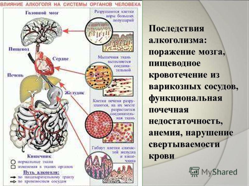 Последствия алкоголизма: поражение мозга, пищеводное кровотечение из варикозных сосудов, функциональная почечная недостаточность, анемия, нарушение свертываемости крови