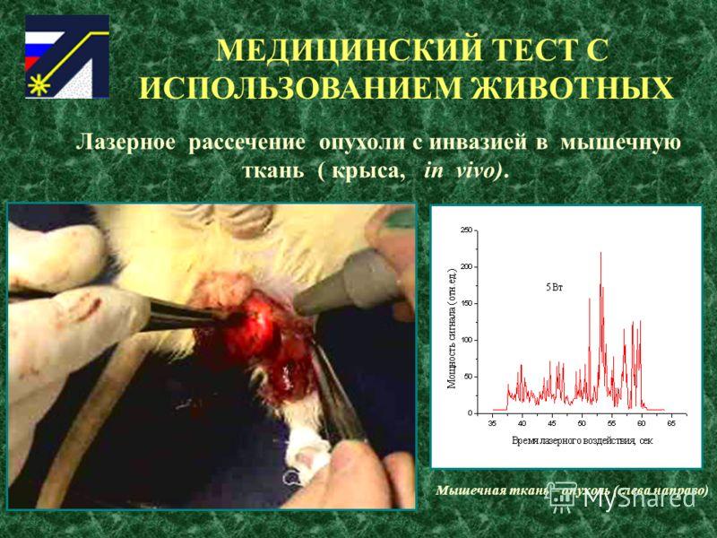 МЕДИЦИНСКИЙ ТЕСТ С ИСПОЛЬЗОВАНИЕМ ЖИВОТНЫХ Лазерное рассечение опухоли с инвазией в мышечную ткань ( крыса, in vivo). Мышечная ткань – опухоль (слева направо)