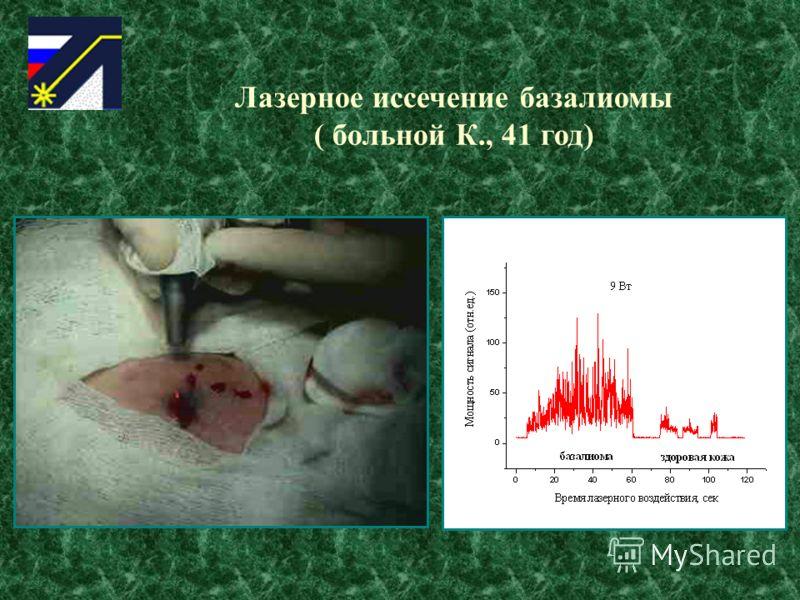 Лазерное иссечение базалиомы ( больной К., 41 год)