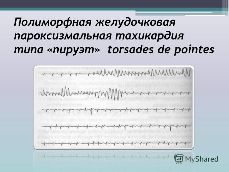 Полиморфная желудочковая пароксизмальная тахикардия типа «пируэт» torsades de pointes
