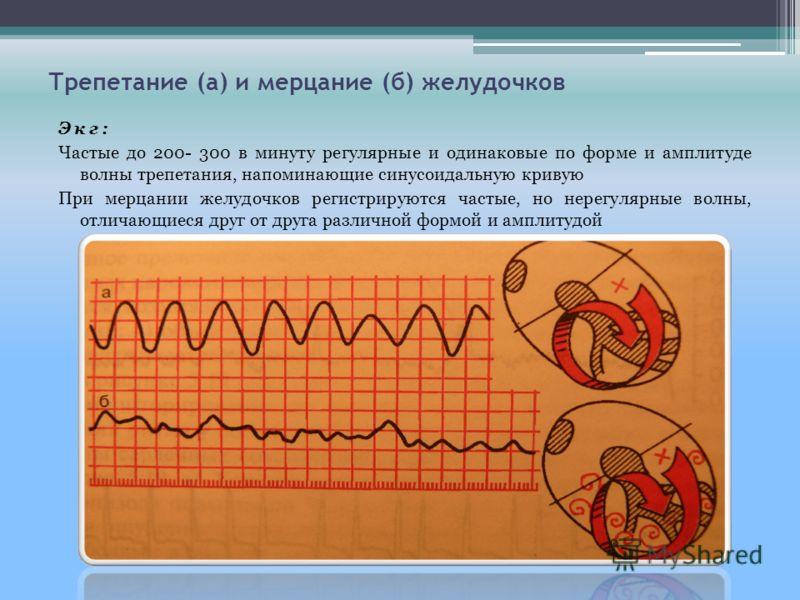 Трепетание (а) и мерцание (б) желудочков Экг: Частые до 200- 300 в минуту регулярные и одинаковые по форме и амплитуде волны трепетания, напоминающие синусоидальную кривую При мерцании желудочков регистрируются частые, но нерегулярные волны, отличающ