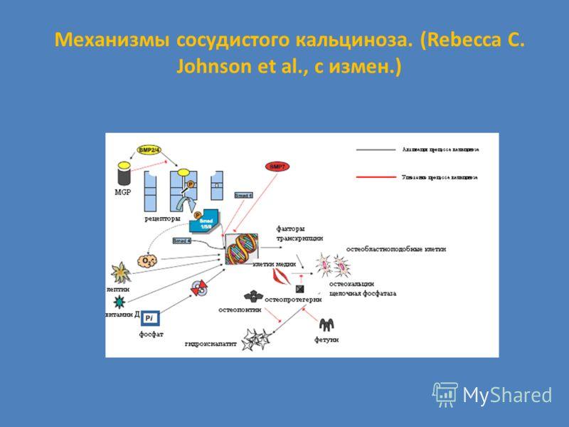 Механизмы сосудистого кальциноза. (Rebecca C. Johnson et al., с измен.)