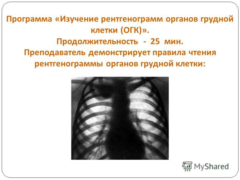 Программа « Изучение рентгенограмм органов грудной клетки ( ОГК )». Продолжительность - 25 мин. Преподаватель демонстрирует правила чтения рентгенограммы органов грудной клетки :